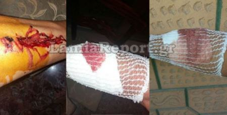 Λαμία: Άγρια επίθεση σκύλων μέσα στην πόλη - Δείτε εικόνες!