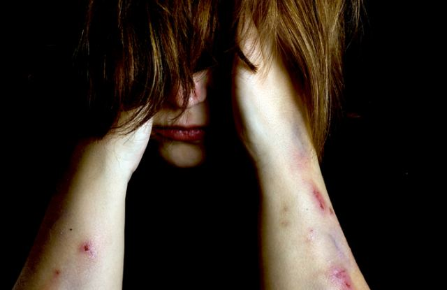Βοιωτία : Τυφλή βία μεταξύ αλλοδαπών! Χτύπησαν γυναίκα και της έκοψαν τα μαλλιά